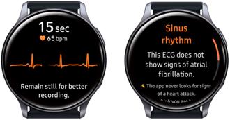 Samsung Galaxy Watch3 ECG app screenshot